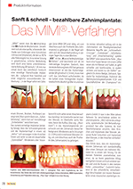 Produktinformation MIMI Verfahren